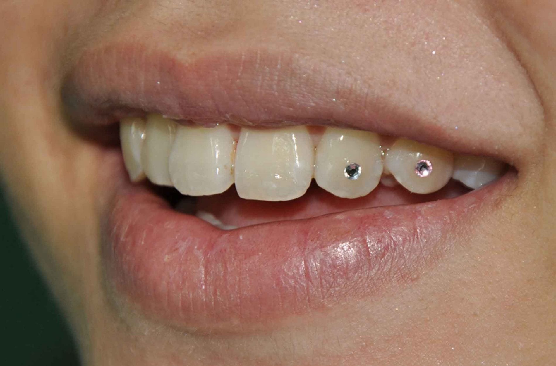 tooth gems