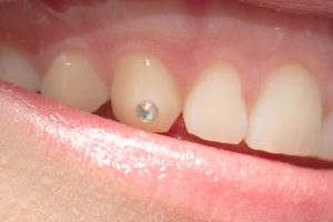 The Dangers of Tooth Gems - Stensland Dental Studio